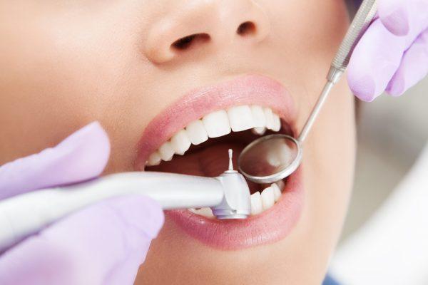 Få pæne tænder med faste tandlægebesøg